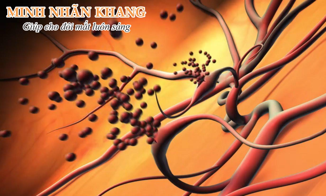 Hình ảnh mạch máu tân sinh trong bệnh võng mạc tiểu đường
